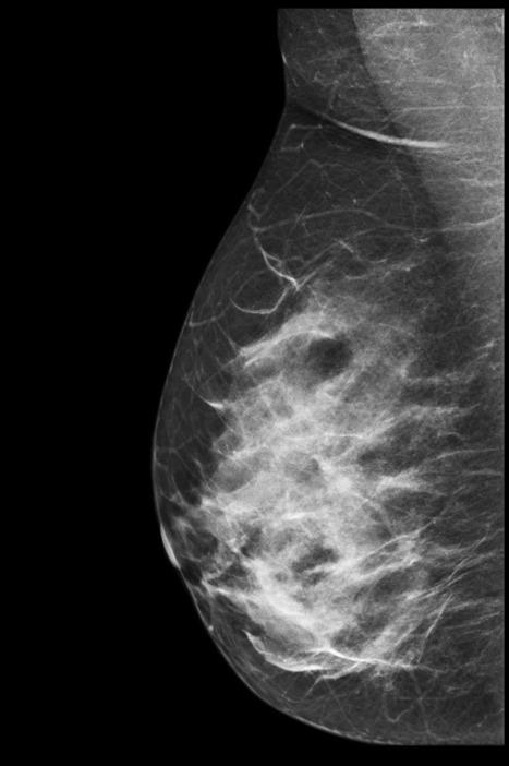 2D mammogram